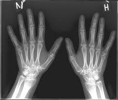 røntgen trianglen